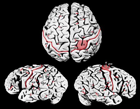 Albert Einstein'in beyninin fotoğrafları